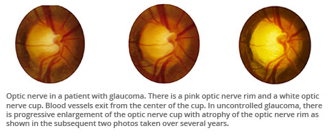 Optic nerve in a glaucoma patient