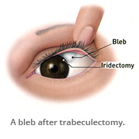 A bleb after trabeculectomy.)