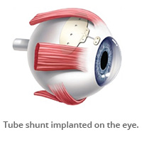 Tube shunt implanted on the eye.)